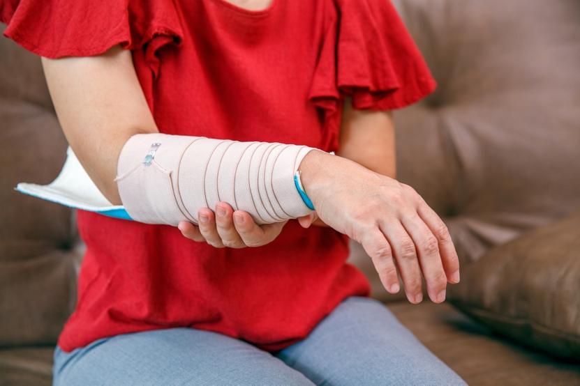 bone health, broken arm